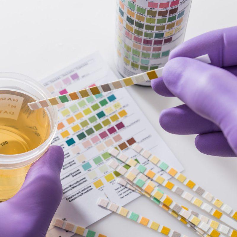 analisi-urine-messina