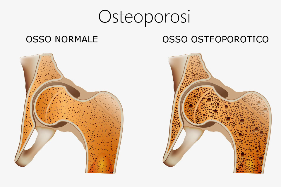 controllo-osteoporosi-messina